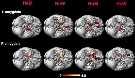 Amygdala activity in heterosexual men and women (HeM and HeW) and homosexual men and women