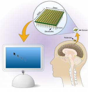 The BrainGate neural interface system