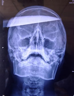 X-ray of gamer with knife in skull