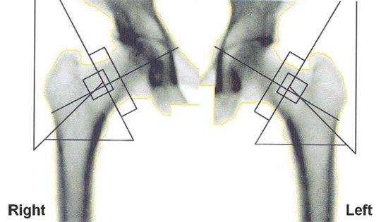 Hips X-ray