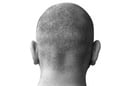 back of man's shaved head