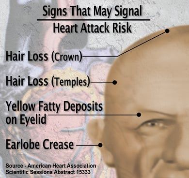 Looking old increases risk of heart disease