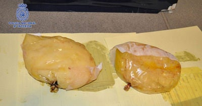 The cocaine-packed implants after extraction. Source. Spanish police