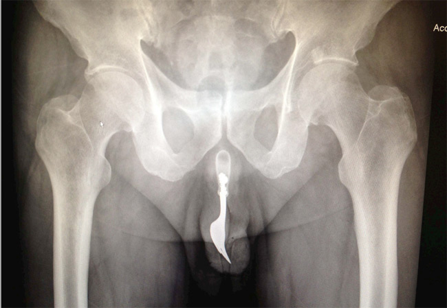 An X-ray of the fork inside the patient's penis. Image: The International Journal of Surgery