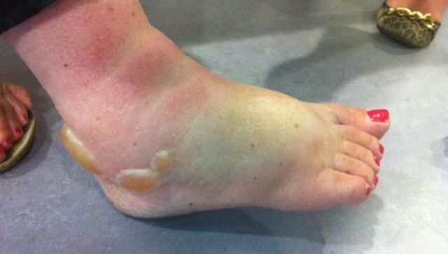 Nicola's swollen foot after t