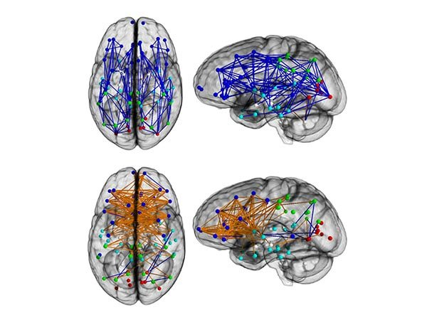 DTI scans of male and female brains, showing pathways