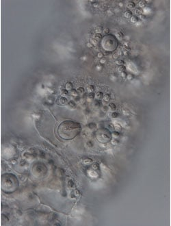 Nematocysts - the tiny capsules delivered by a jellyfish sting