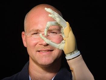 ILimb prosthetic hand