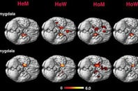 Amygdala activity in heterosexual men and women (HeM and HeW) and homosexual and women