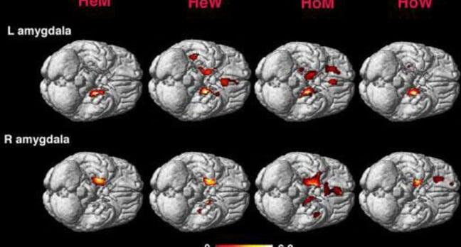 Amygdala activity in heterosexual men and women (HeM and HeW) and homosexual and women