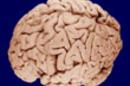 Human_brain_SM