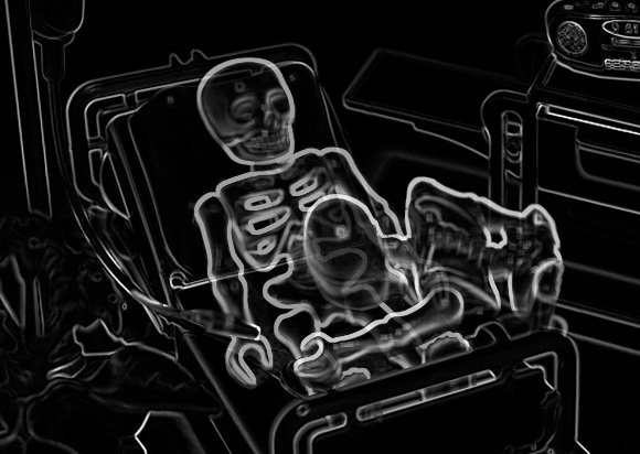 X-ray image of wife administering final act of mercy