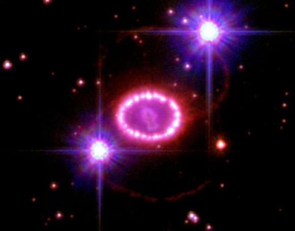 The 'String of Pearls' around remnants of supernova 1987A in the Large Magellanic Cloud. Credit: CU-Boulder