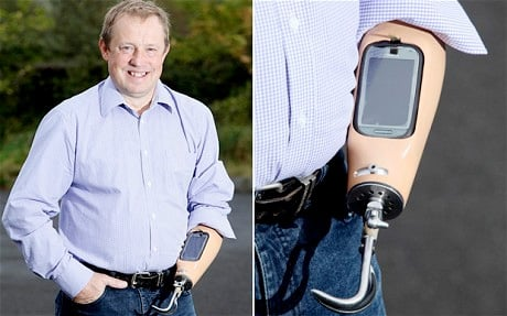 Trevor Prideaux's prosthetic smartphone arm