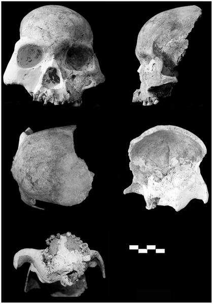 Red Deer people skulls