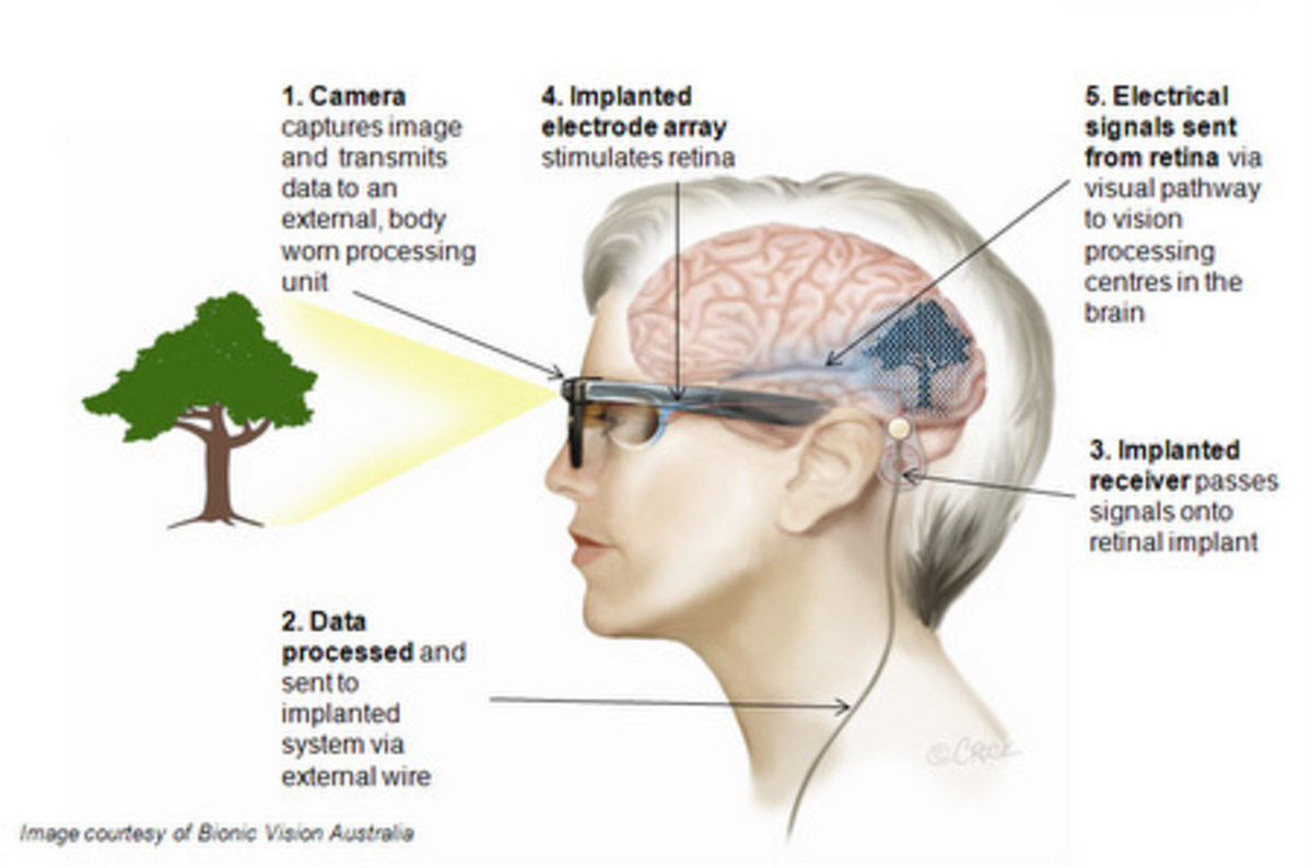 Pre Bionic Eye Implanted In Blind Patient The Register