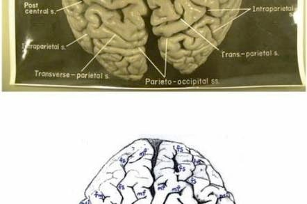 One of the newly-uncovered photos of Albert Einstein's brain