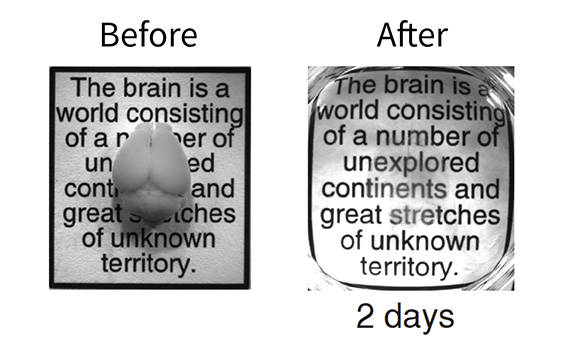 Before and after photos showing a brain made transparent using the CLARITY technique