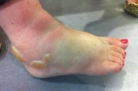 Nicola's swollen foot after the spider attack