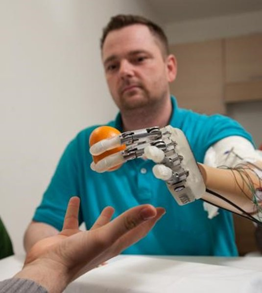 A prosthetic hand with a sense of touch