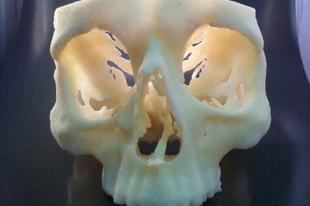 Sacnned and printed in 3d skull