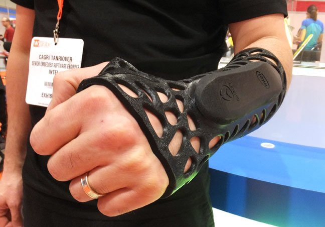 Osteoid cast modified to become the Intel Smart Splint