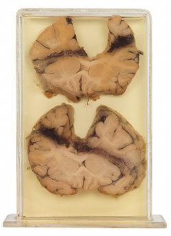 Bullet-damaged brain in a jar