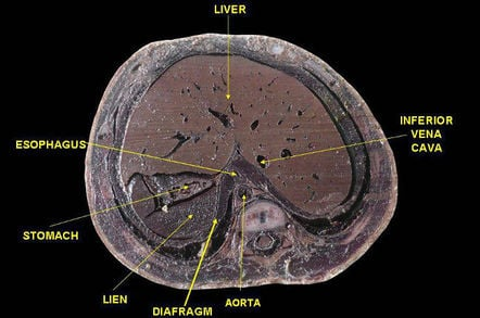 Human liver cross-section. Pic: Anatomist90 via Wiki