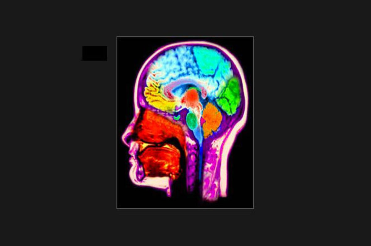 Identification of the cortical sources of the steady-state ...