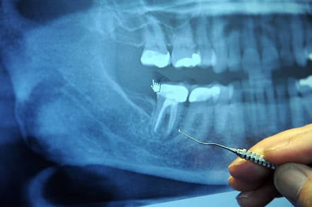 Dr. Alan Carr points out the broken root or bad root canal of a right rear molar (tooth), dental tool, orthodontist's office, full jaw Xray, Factoria, Washington, USA by https://www.flickr.com/photos/wonderlane/ cc 2.0 attribution https://creativecommons.org/licenses/by/2.0/