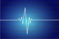 Heartbeat graph
