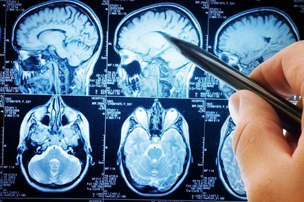 MRI SCANS. Photo by shutterstock