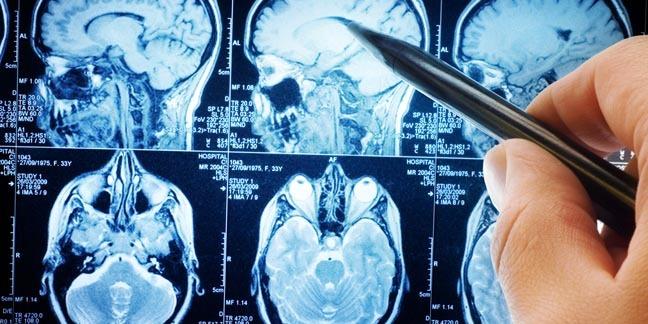 MRI SCANS. Photo by shutterstock