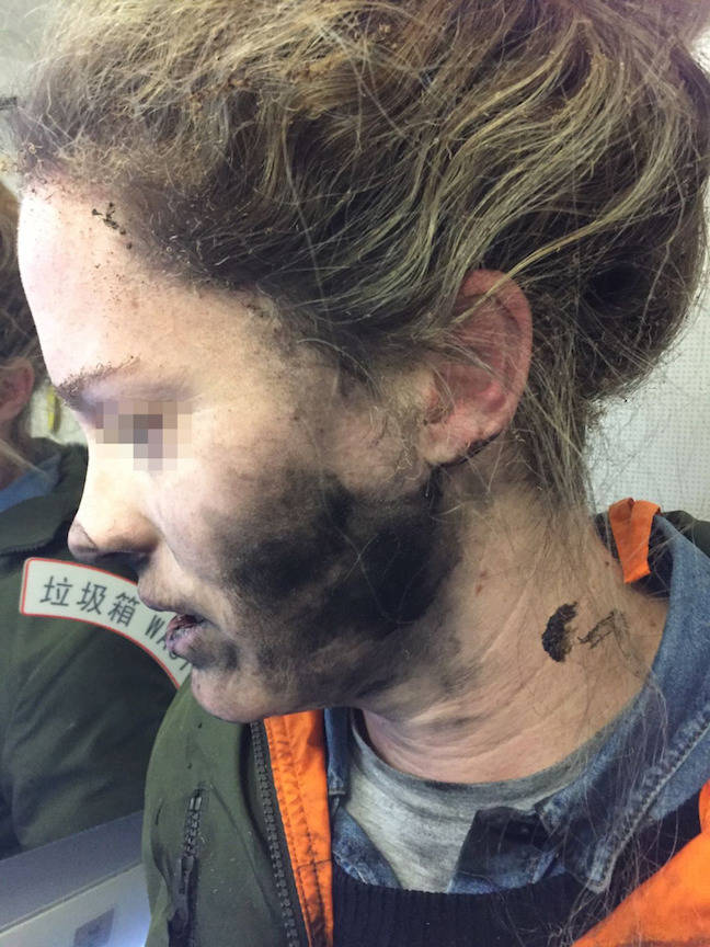 Passenger injured by exploding headphones