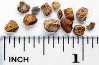 Kidney stones and a ruler