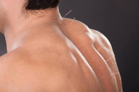 man gets acupuncture in back